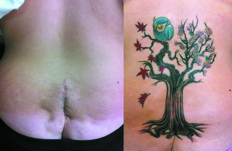 clareketon_tattoo_female_back_tree_owl_scar.jpg